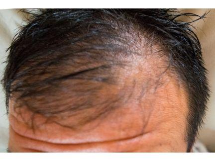 薄毛の男性の写真